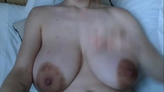 Engorged Breasts - Closeup View